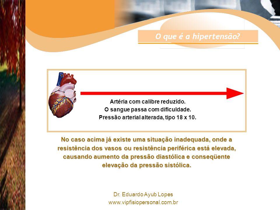 O que é a hipertensão Artéria com calibre reduzido. O sangue passa com dificuldade. Pressão arterial alterada, tipo 18 x 10.