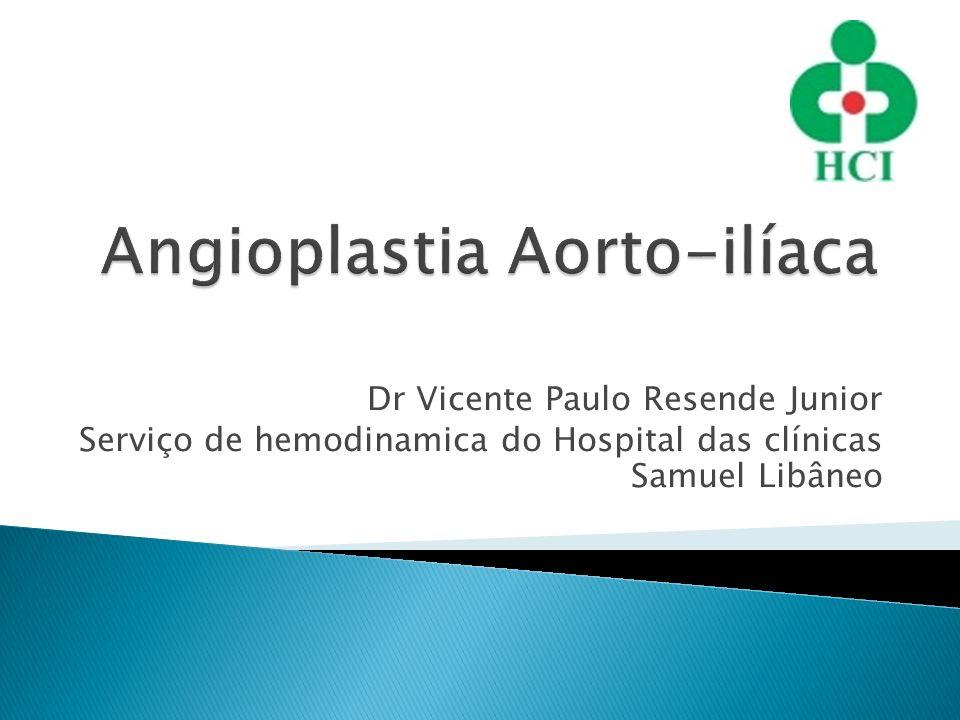 Angioplastia Aorto-ilíaca
