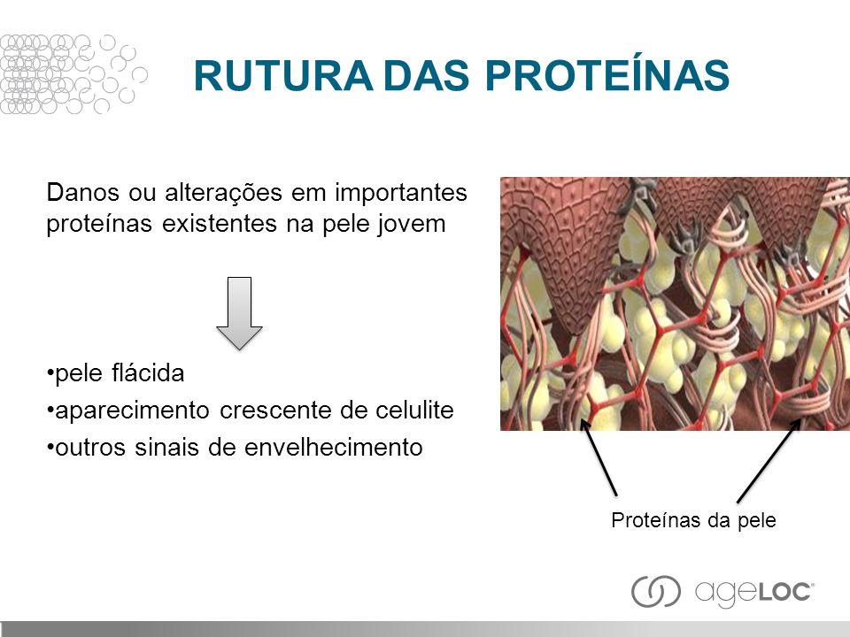 RUTURA DAS PROTEÍNAS Danos ou alterações em importantes proteínas existentes na pele jovem. pele flácida.