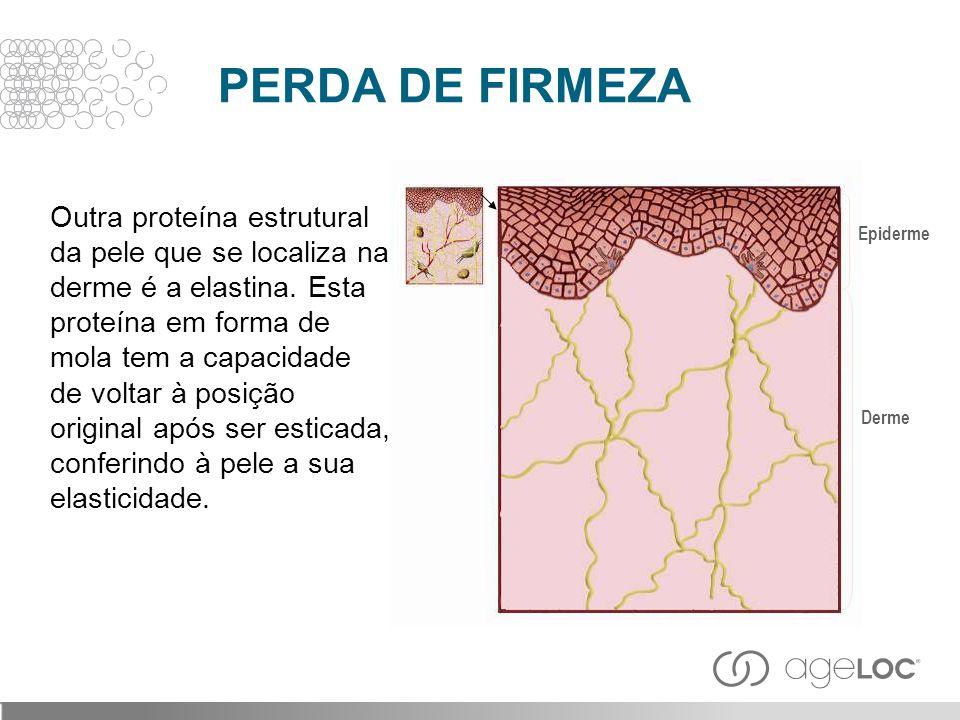 PERDA DE FIRMEZA