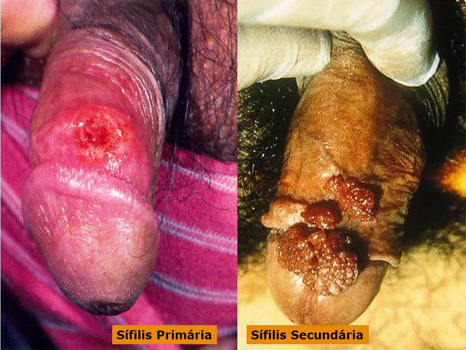 Sífilis Primária Sífilis Secundária