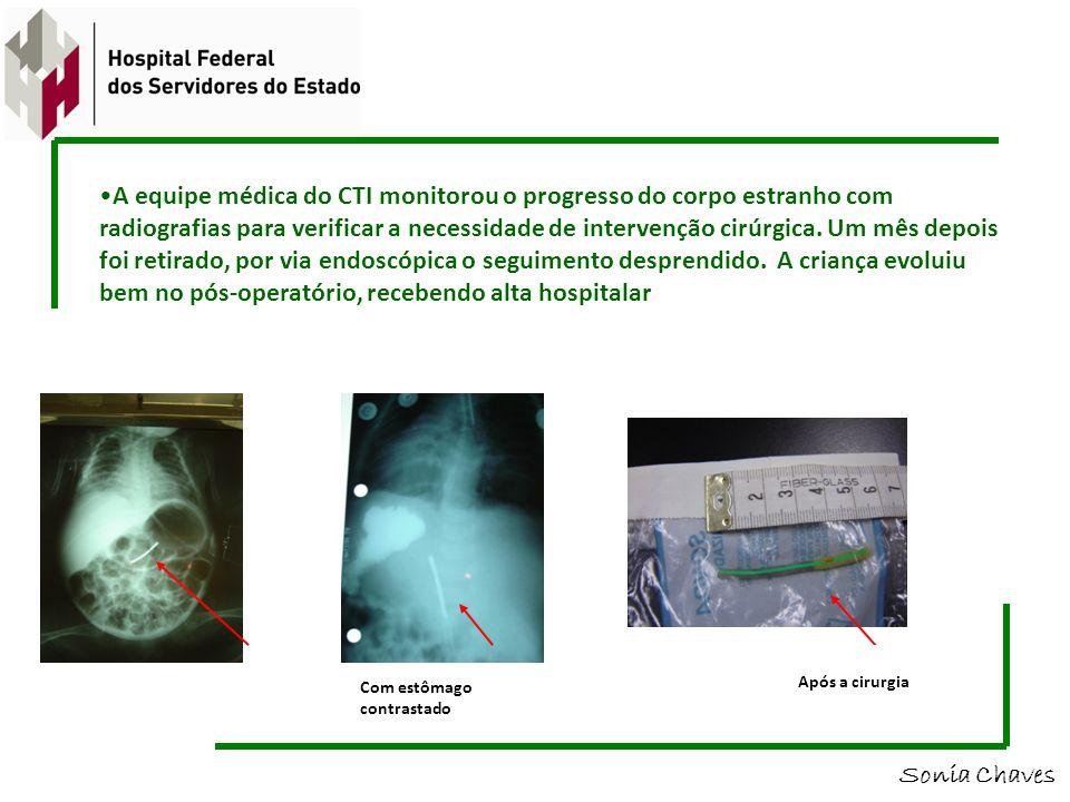 A equipe médica do CTI monitorou o progresso do corpo estranho com radiografias para verificar a necessidade de intervenção cirúrgica. Um mês depois foi retirado, por via endoscópica o seguimento desprendido. A criança evoluiu bem no pós-operatório, recebendo alta hospitalar