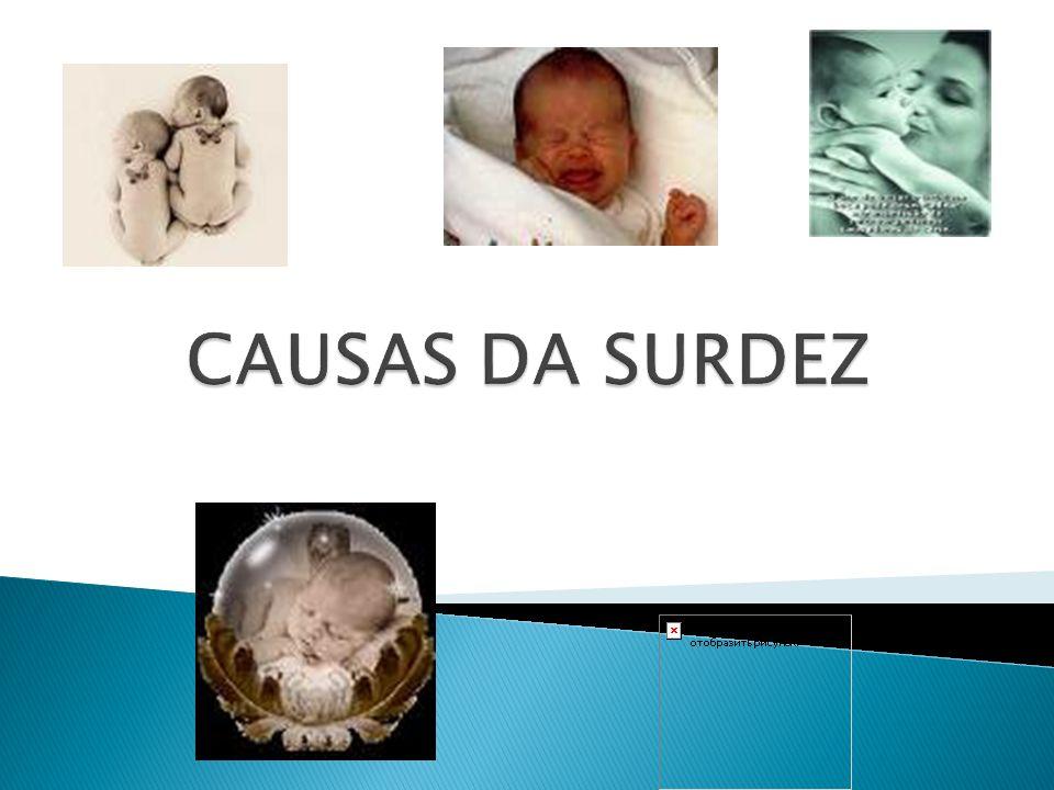 CAUSAS DA SURDEZ