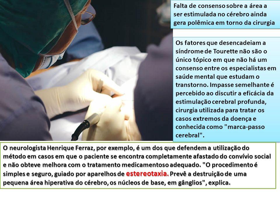 Falta de consenso sobre a área a ser estimulada no cérebro ainda gera polêmica em torno da cirurgia