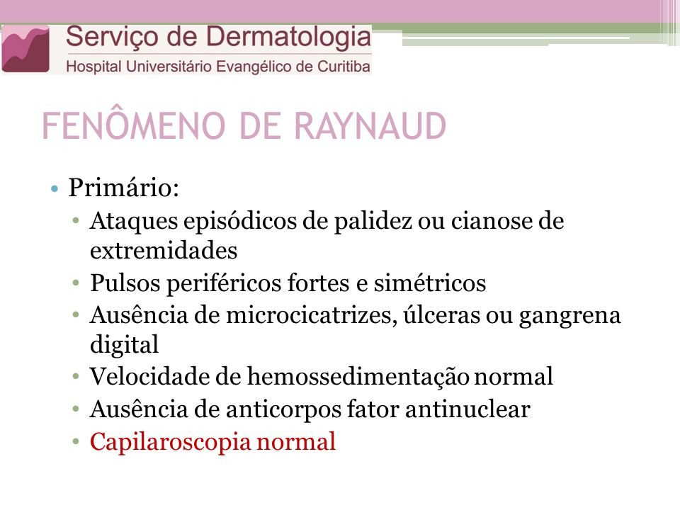FENÔMENO DE RAYNAUD Primário: