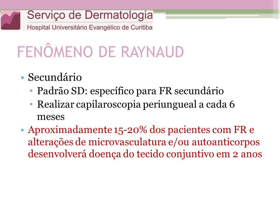 FENÔMENO DE RAYNAUD Secundário