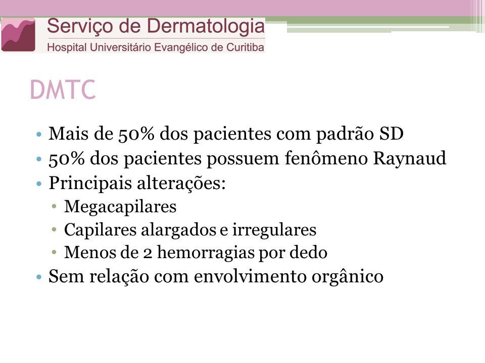 DMTC Mais de 50% dos pacientes com padrão SD