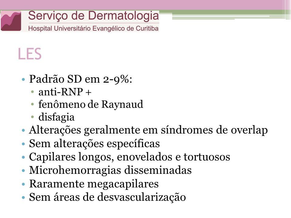 LES Padrão SD em 2-9%: Alterações geralmente em síndromes de overlap
