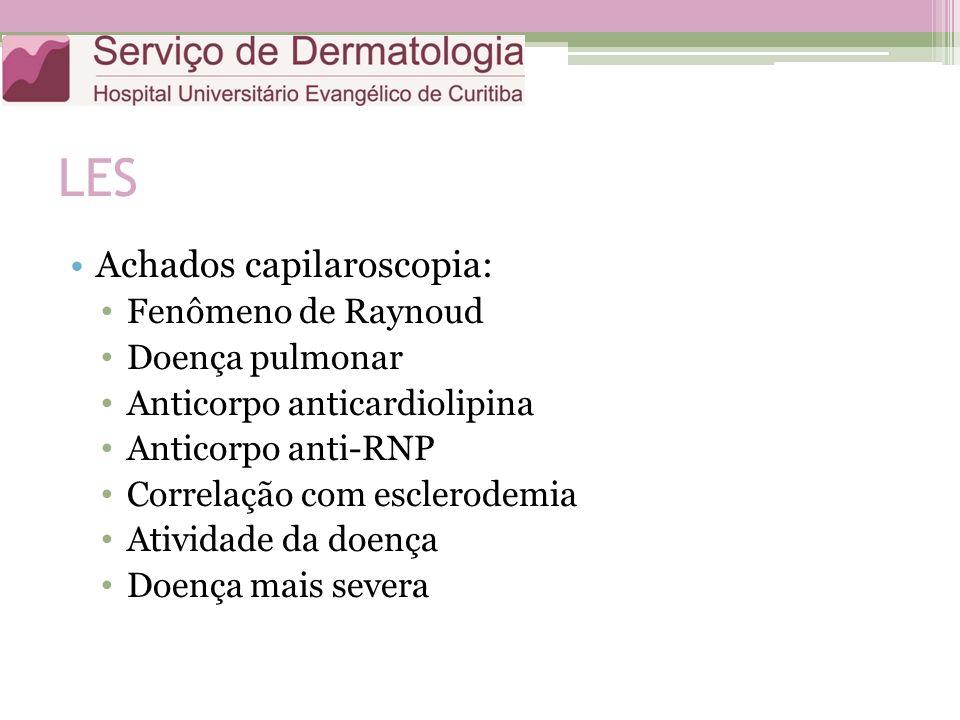 LES Achados capilaroscopia: Fenômeno de Raynoud Doença pulmonar