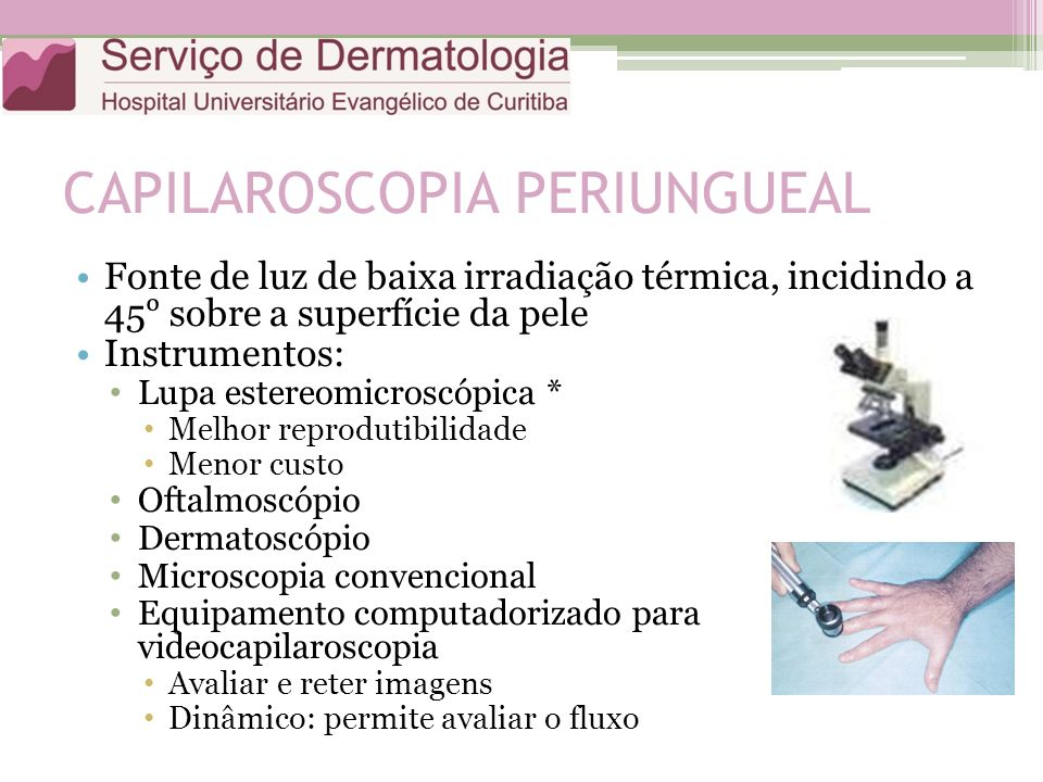 CAPILAROSCOPIA PERIUNGUEAL