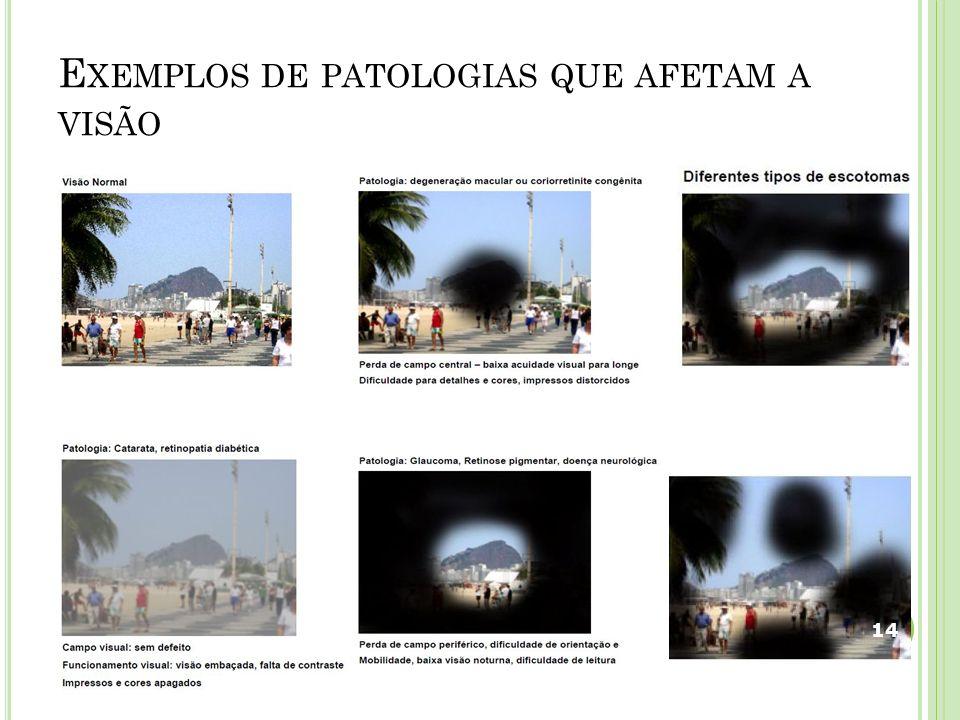 Exemplos de patologias que afetam a visão