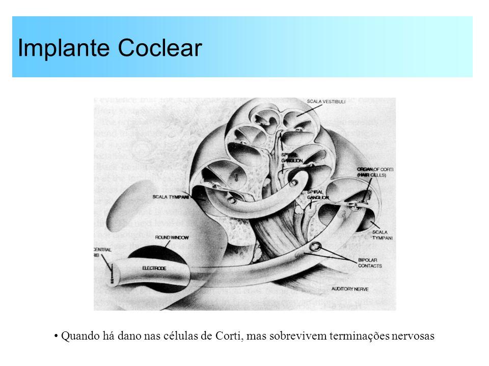 Implante Coclear Quando há dano nas células de Corti, mas sobrevivem terminações nervosas