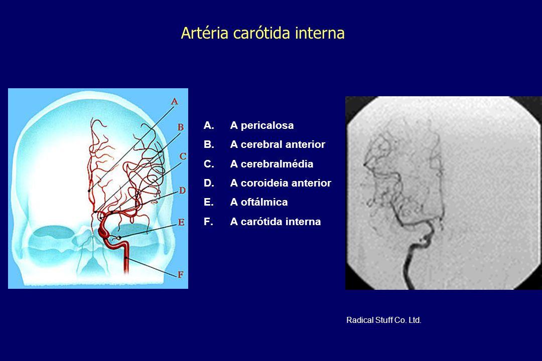 Artéria carótida interna