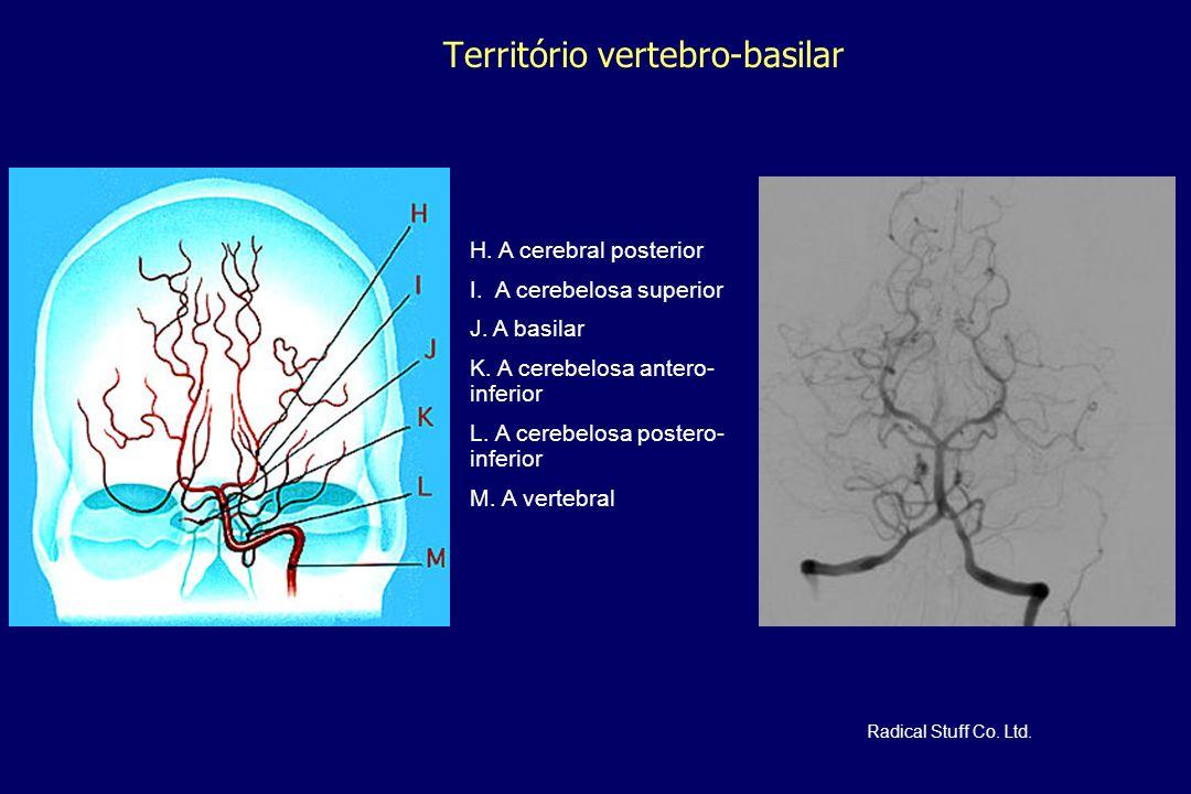 Território vertebro-basilar