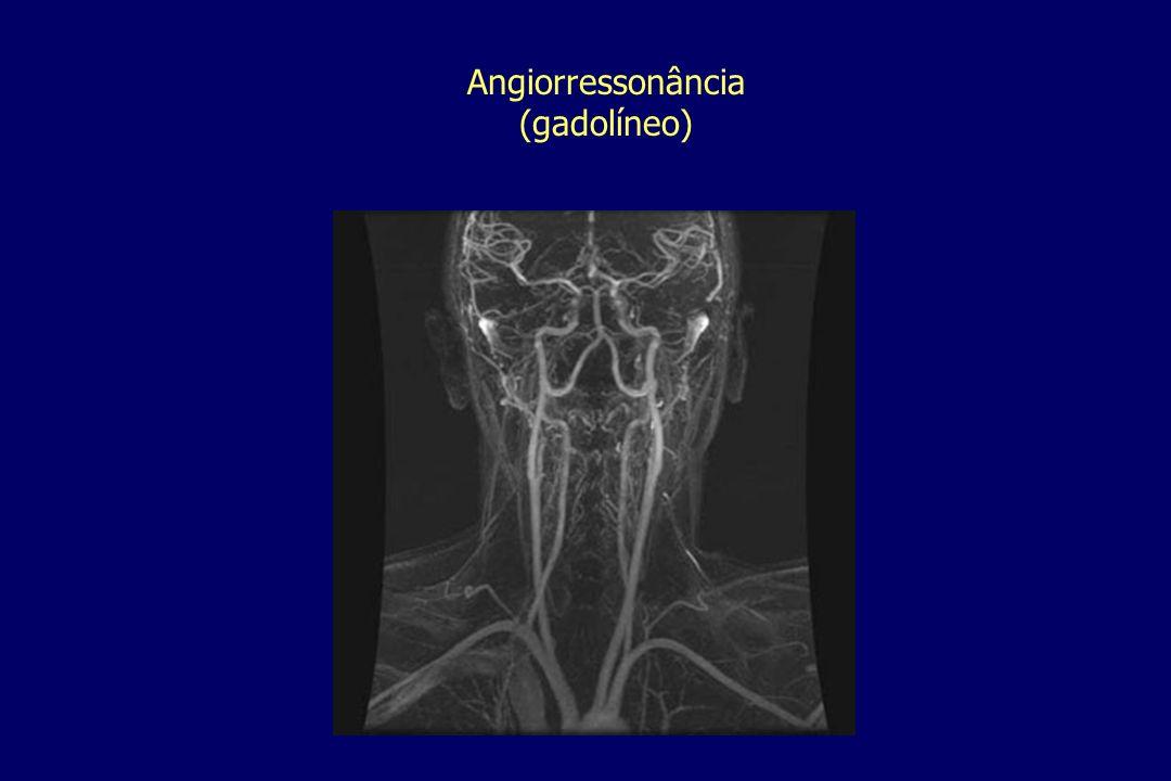 Angiorressonância(gadolíneo)