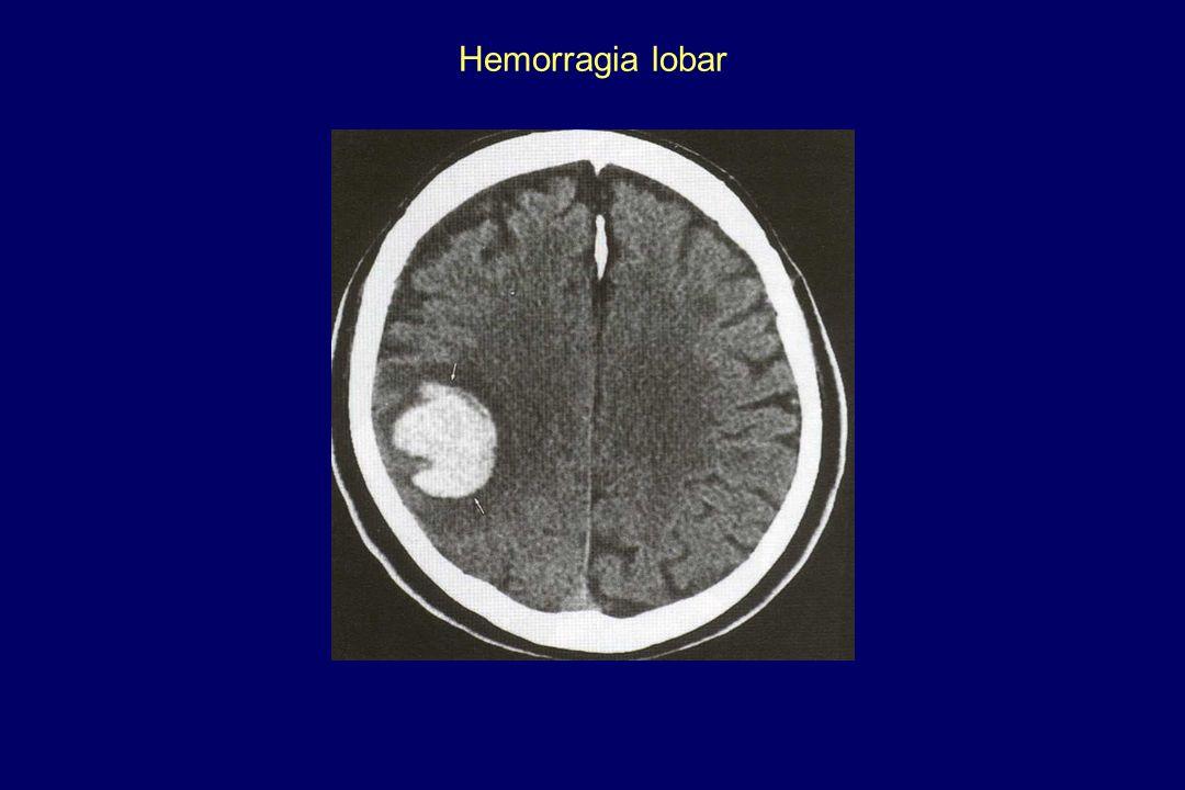 Hemorragia lobar