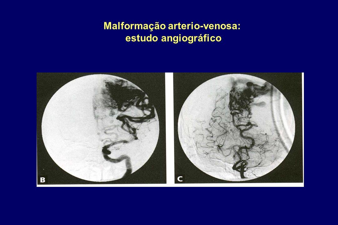 Malformação arterio-venosa: