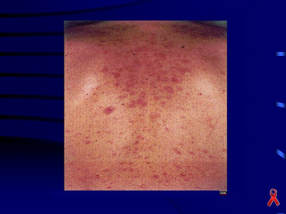 Exanthematous skin rash commonly associated with primary HIV infection