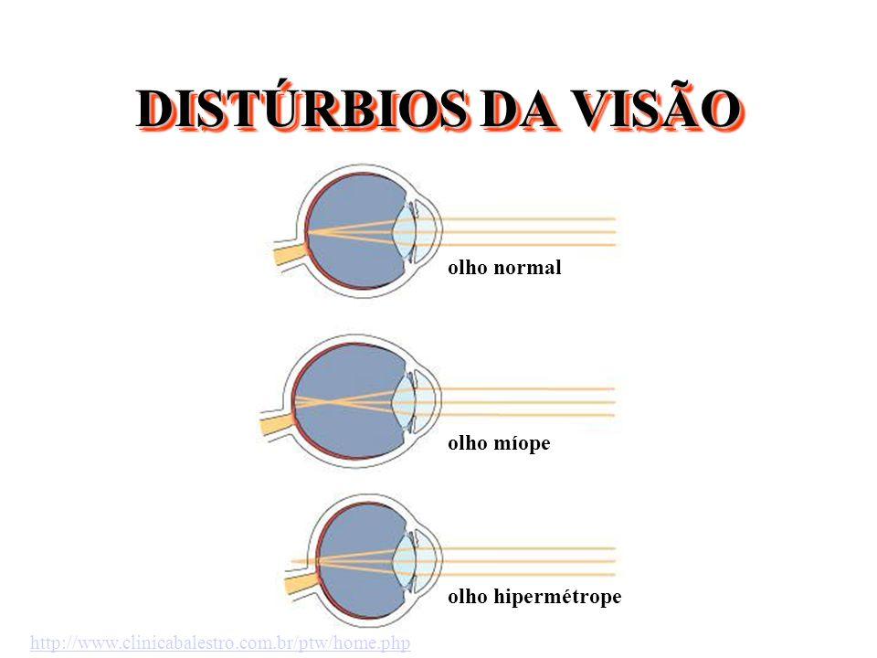 DISTÚRBIOS DA VISÃO olho normal olho míope olho hipermétrope