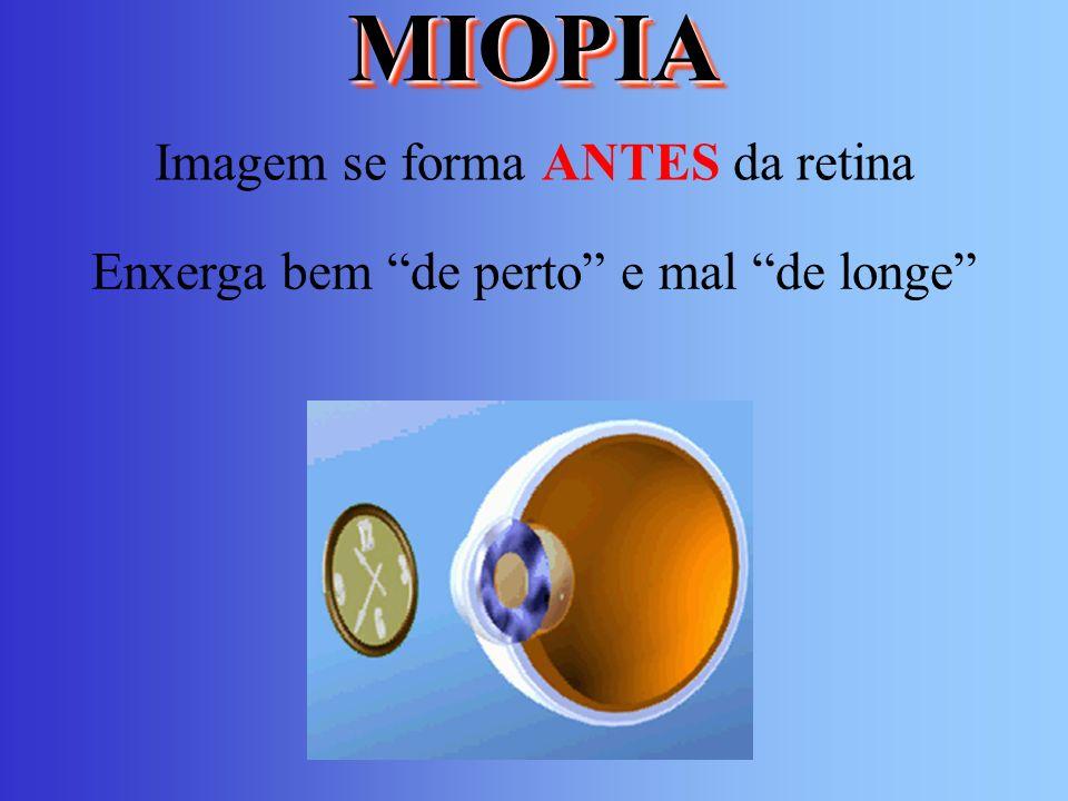 MIOPIA Imagem se forma ANTES da retina