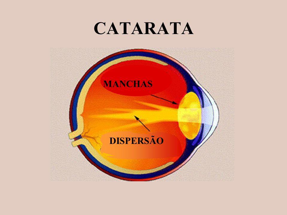 CATARATA MANCHAS DISPERSÃO