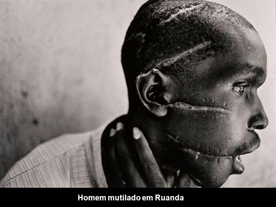 Homem mutilado em Ruanda