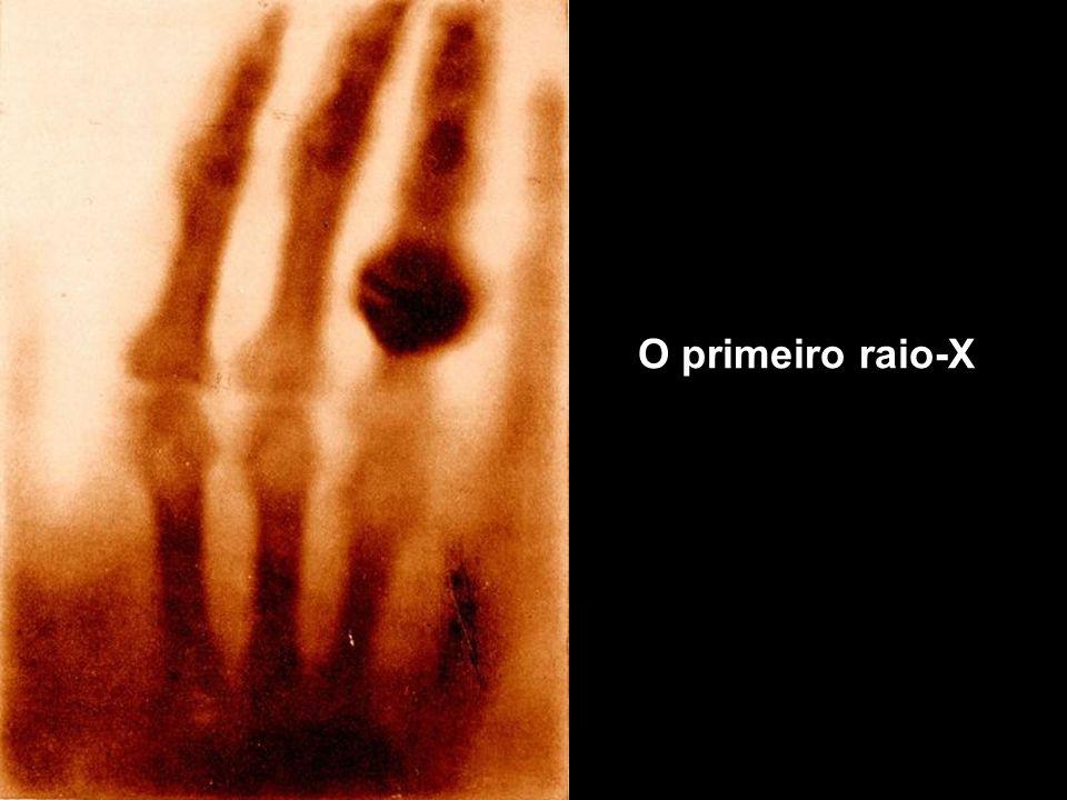 O primeiro raio-X