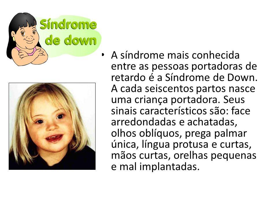 A síndrome mais conhecida entre as pessoas portadoras de retardo é a Síndrome de Down.
