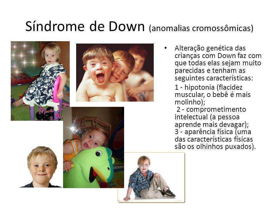 Síndrome de Down (anomalias cromossômicas)