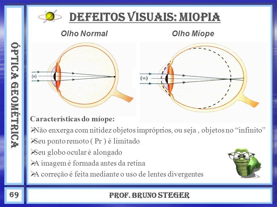 DEFEITOS VISUAIS: Miopia