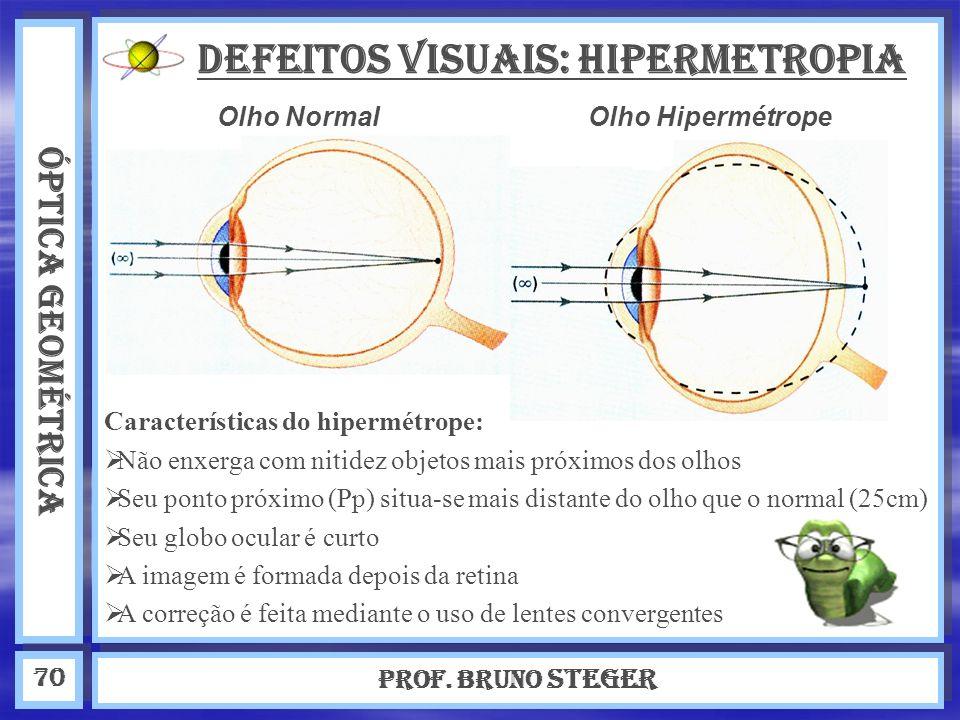 DEFEITOS VISUAIS: Hipermetropia