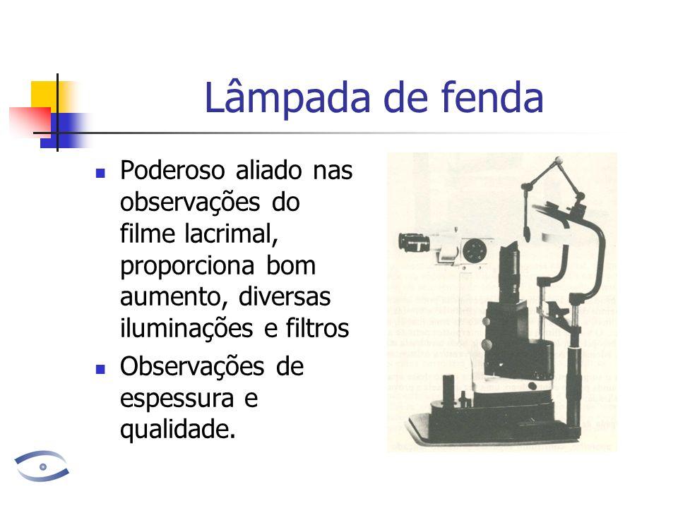 Lâmpada de fenda Poderoso aliado nas observações do filme lacrimal, proporciona bom aumento, diversas iluminações e filtros.