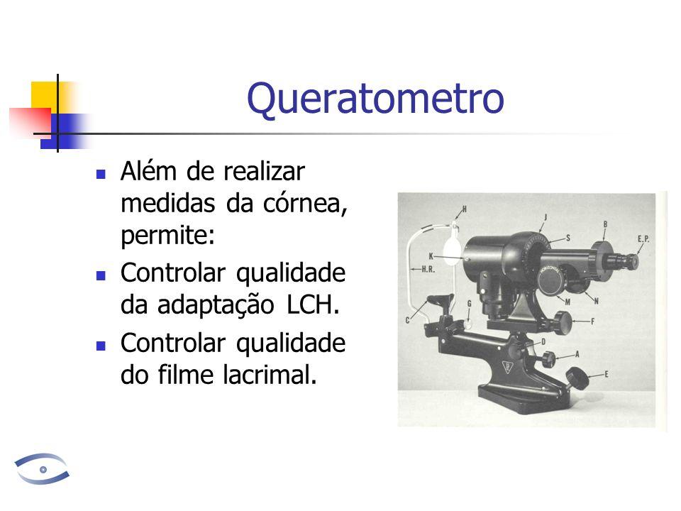 Queratometro Além de realizar medidas da córnea, permite: