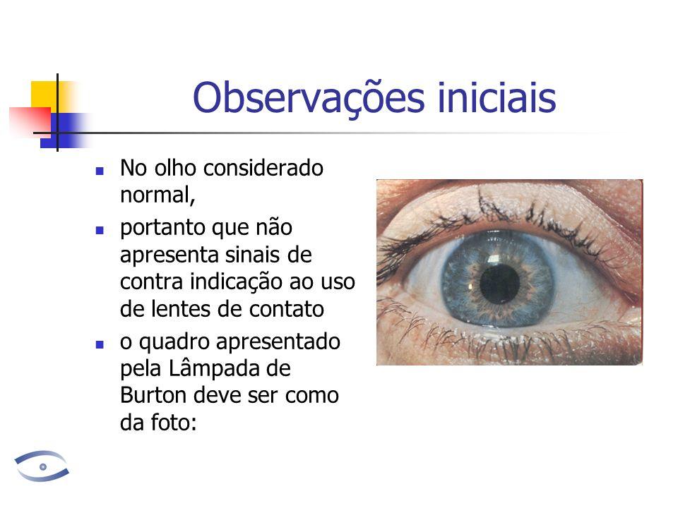 Observações iniciais No olho considerado normal,