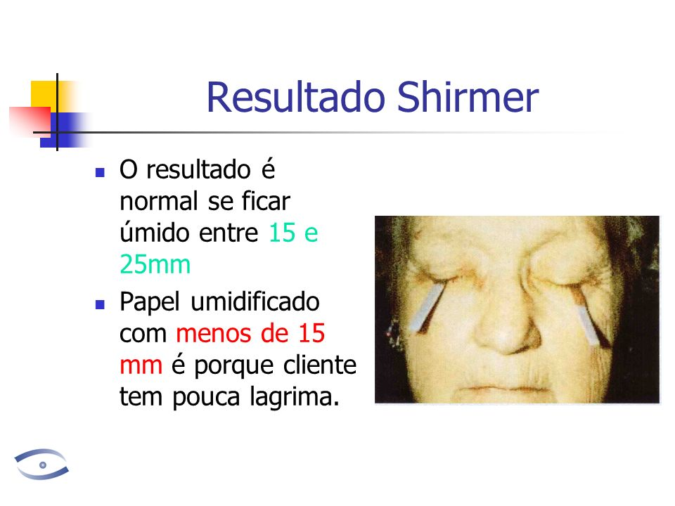 Resultado Shirmer O resultado é normal se ficar úmido entre 15 e 25mm