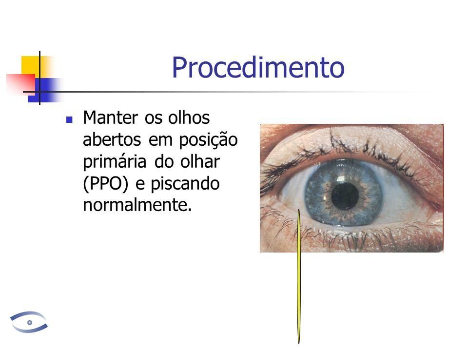 Procedimento Manter os olhos abertos em posição primária do olhar (PPO) e piscando normalmente.