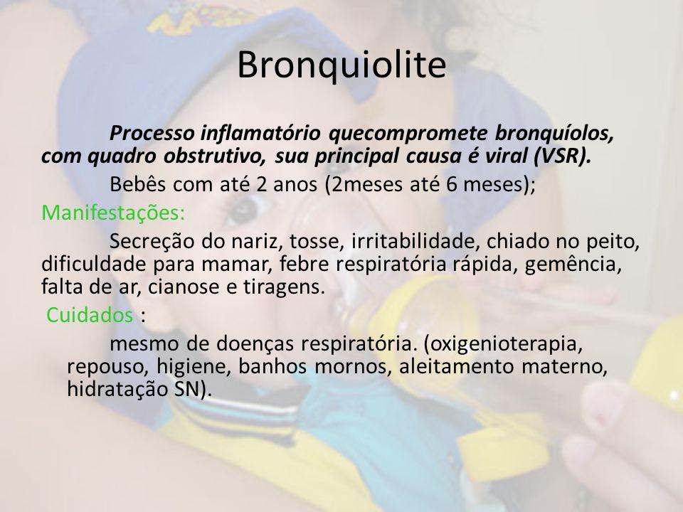 Bronquiolite Processo inflamatório quecompromete bronquíolos, com quadro obstrutivo, sua principal causa é viral (VSR).