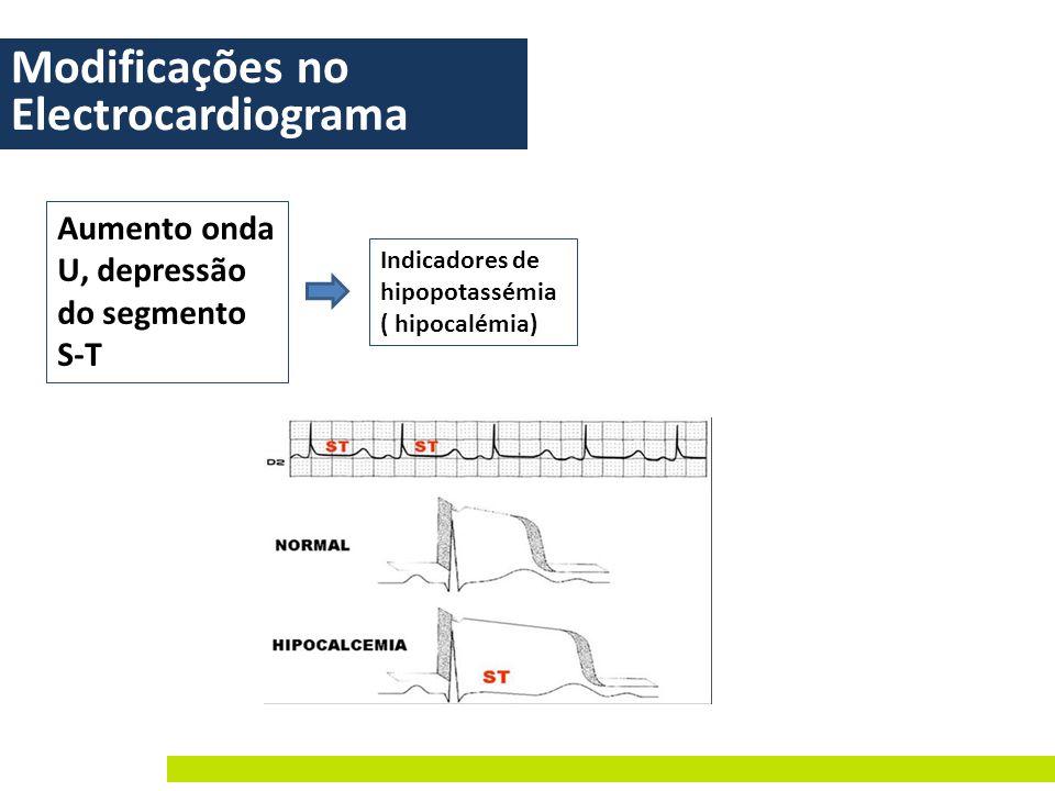 Modificações no Electrocardiograma