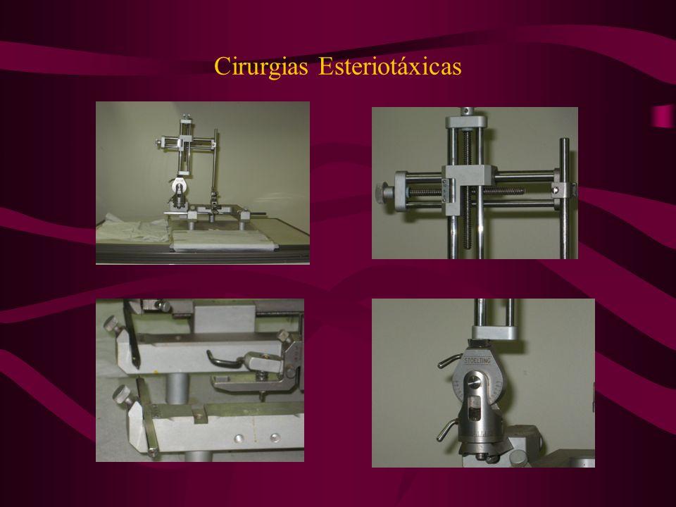 Cirurgias Esteriotáxicas