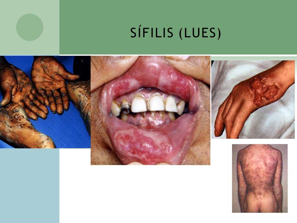 SÍFILIS (LUES)