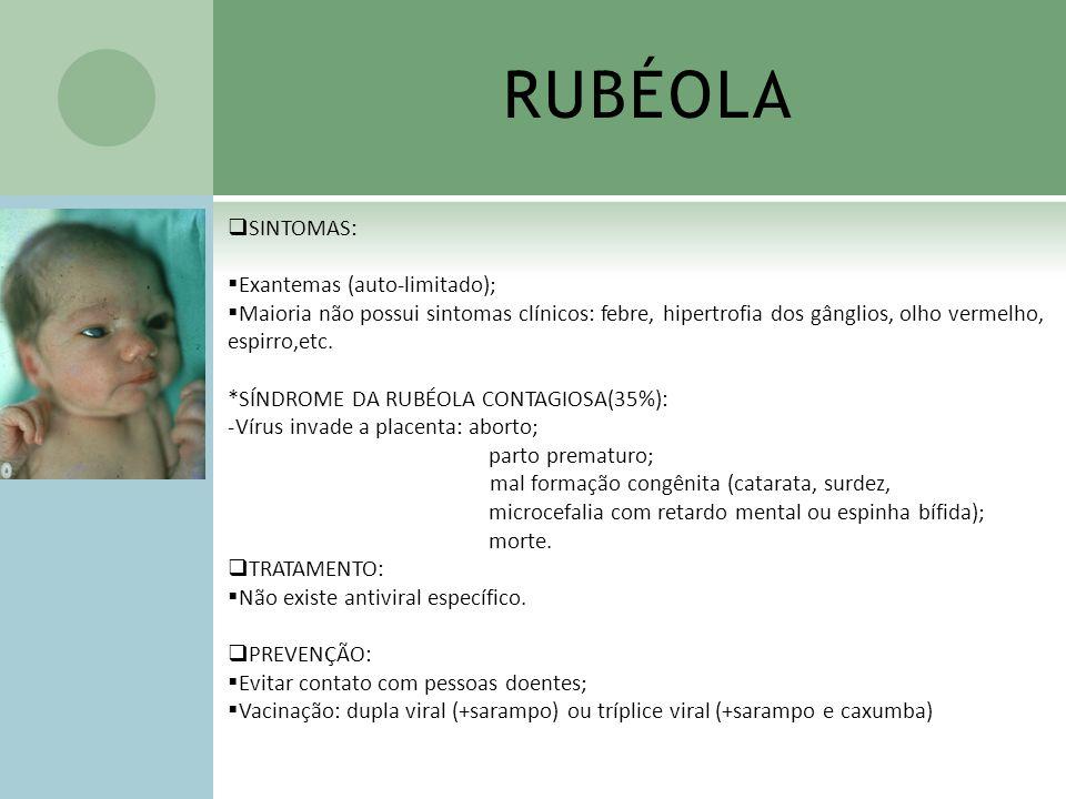 RUBÉOLA SINTOMAS: Exantemas (auto-limitado);