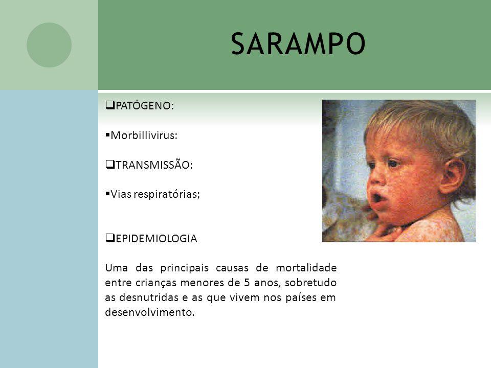 SARAMPO PATÓGENO: Morbillivirus: TRANSMISSÃO: Vias respiratórias;