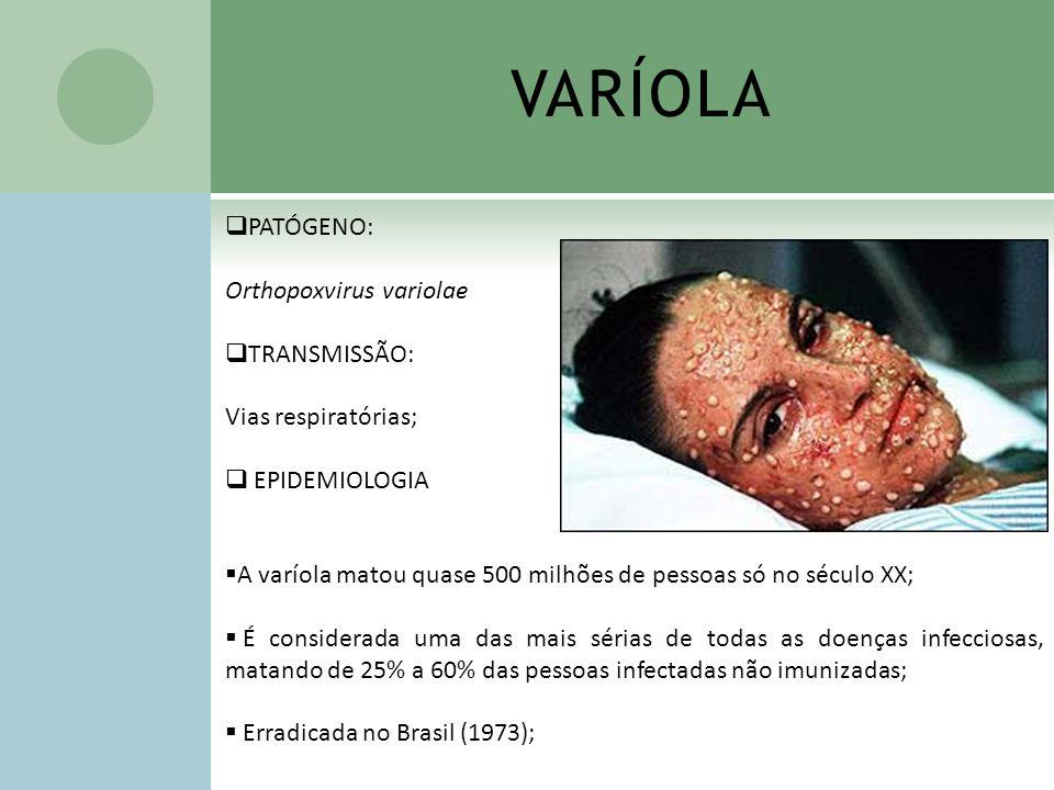 VARÍOLA PATÓGENO: Orthopoxvirus variolae TRANSMISSÃO: