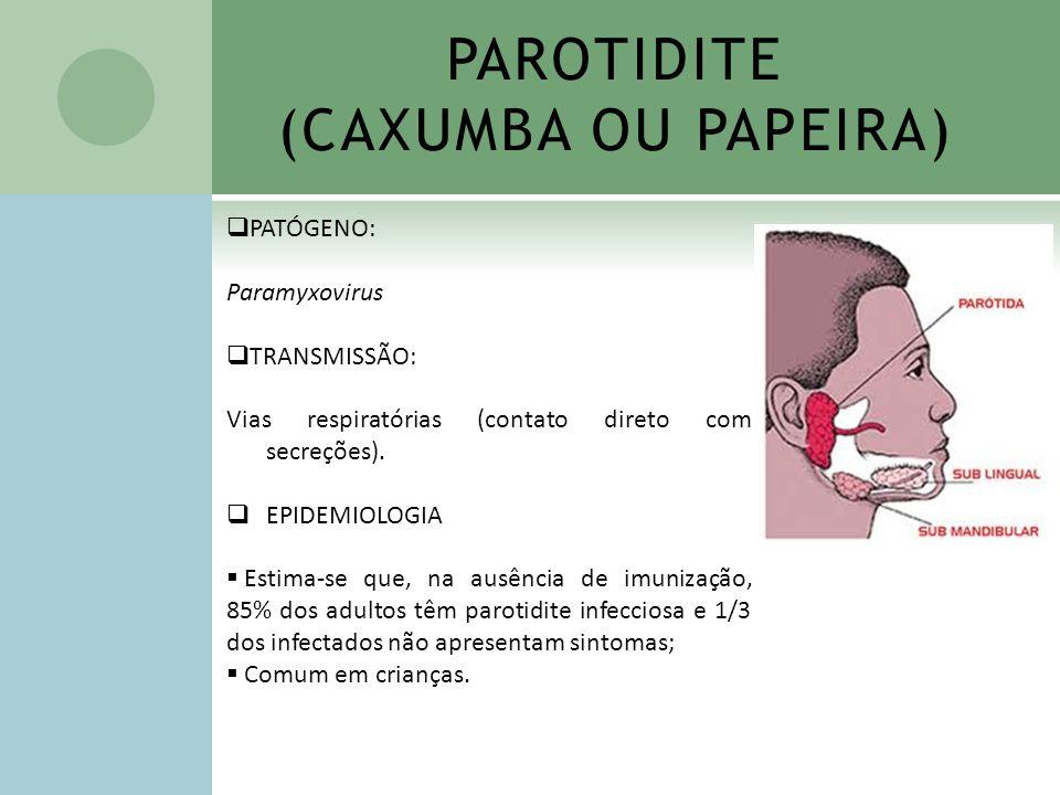 PAROTIDITE (CAXUMBA OU PAPEIRA)