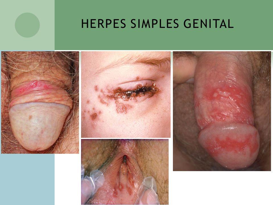 HERPES SIMPLES GENITAL