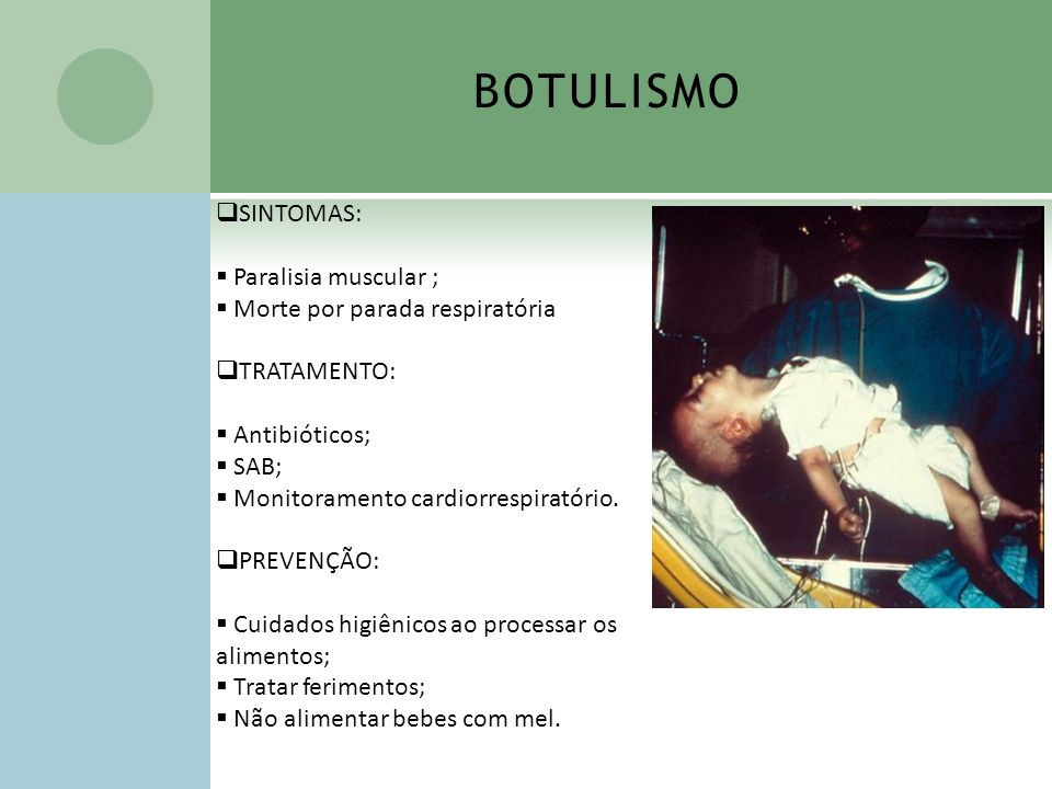 BOTULISMO SINTOMAS: Paralisia muscular ; Morte por parada respiratória