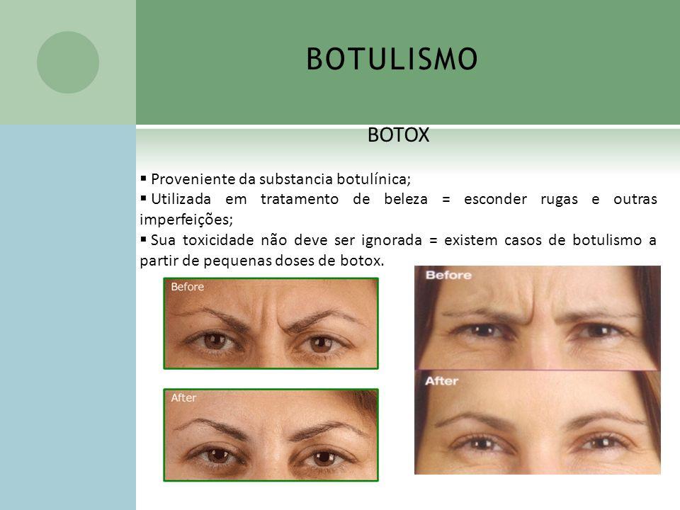 BOTULISMO BOTOX Proveniente da substancia botulínica;