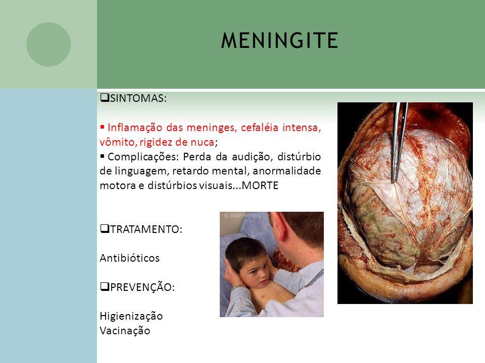 MENINGITE SINTOMAS: Inflamação das meninges, cefaléia intensa, vômito, rigidez de nuca;