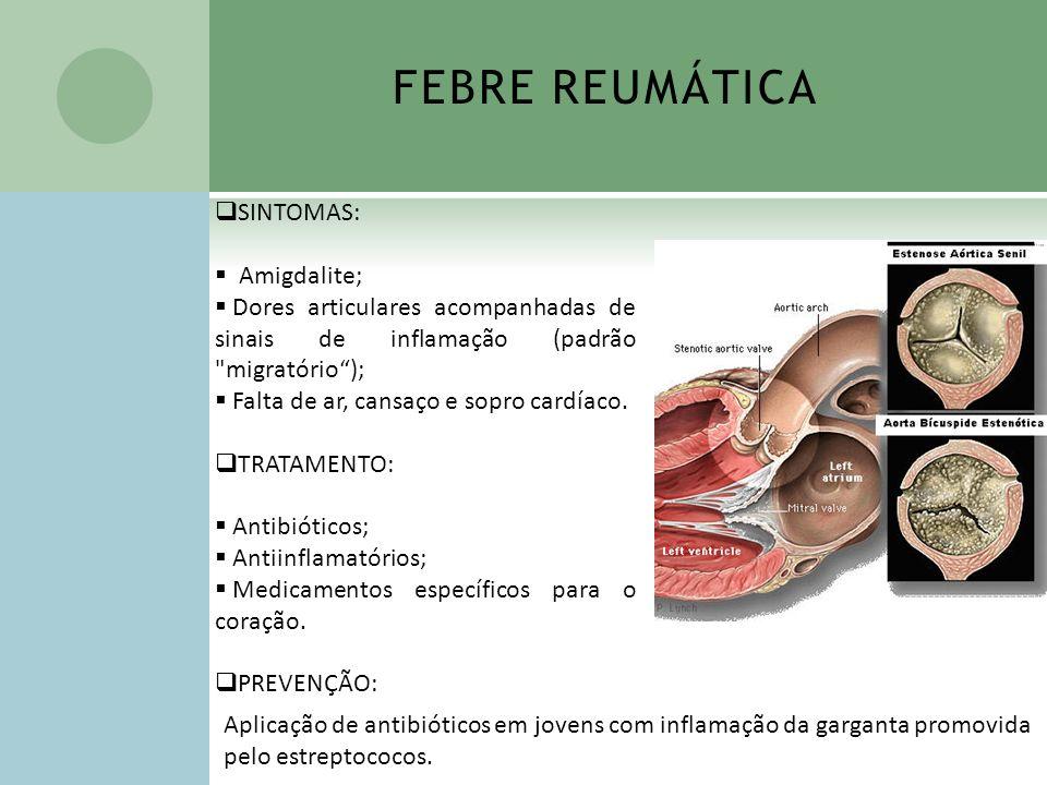 FEBRE REUMÁTICA SINTOMAS: Amigdalite;
