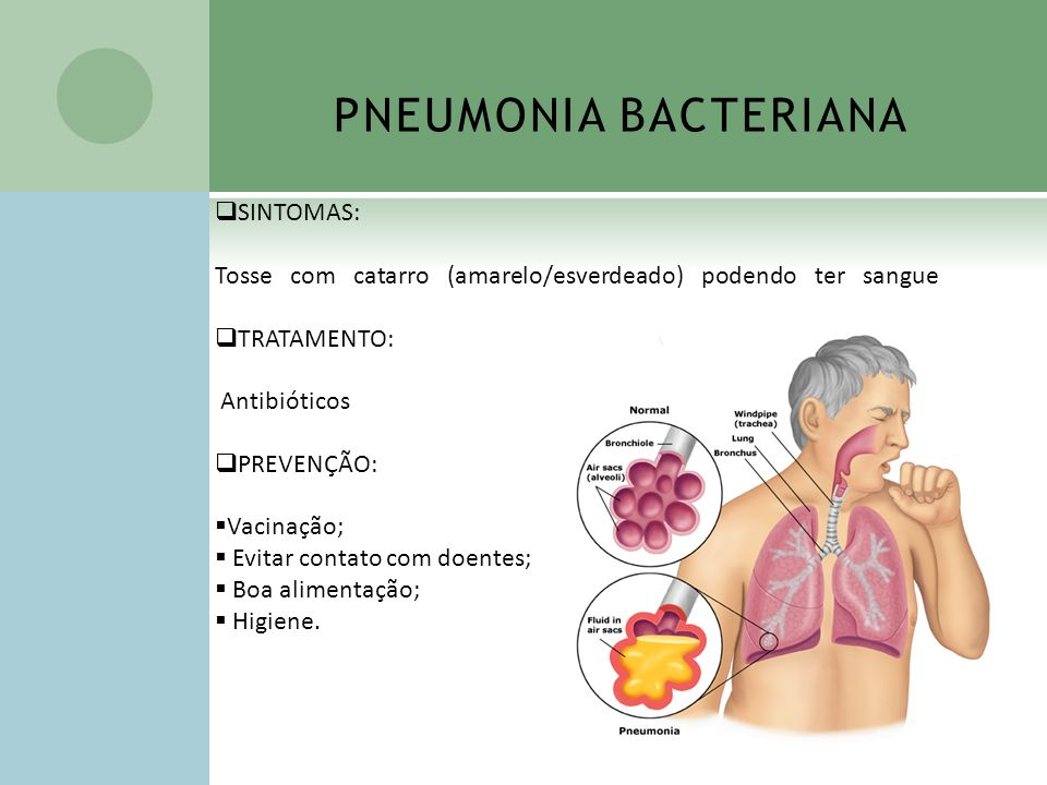 PNEUMONIA BACTERIANA SINTOMAS:
